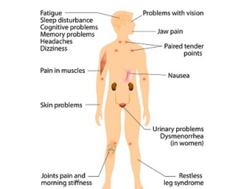 Fibromyalgia and Chiropractic Care